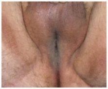 urethostomy-1