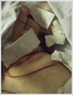 lymphadenectomy pic